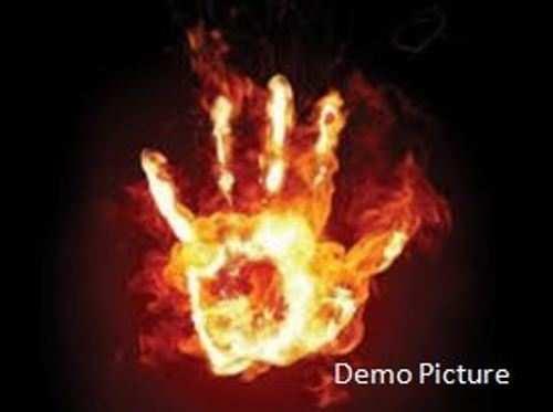उधारी के रूपये लौटाने की बजाय डीज़ल छिड़क कर जला दिया, युवक की मौत