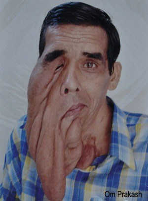Foreigner raises funds for Udaipur Man with facial tumor