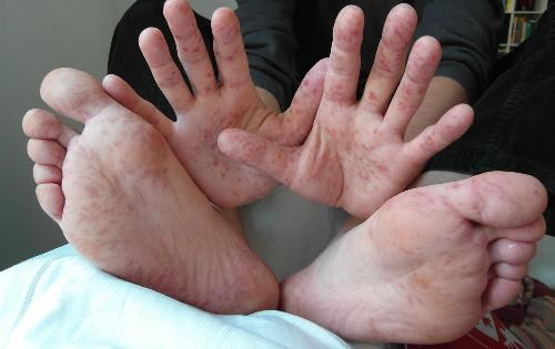 Every blister is not chicken pox-Coxsackievirus