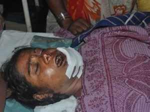 Couple Attacked at Kherwada, Husband killed